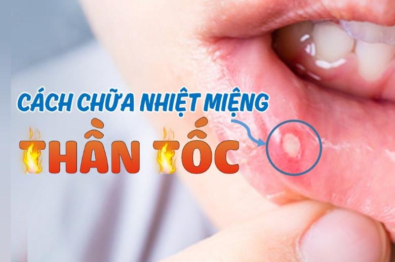 Phương pháp chữa nhiệt miệng nhanh chóng