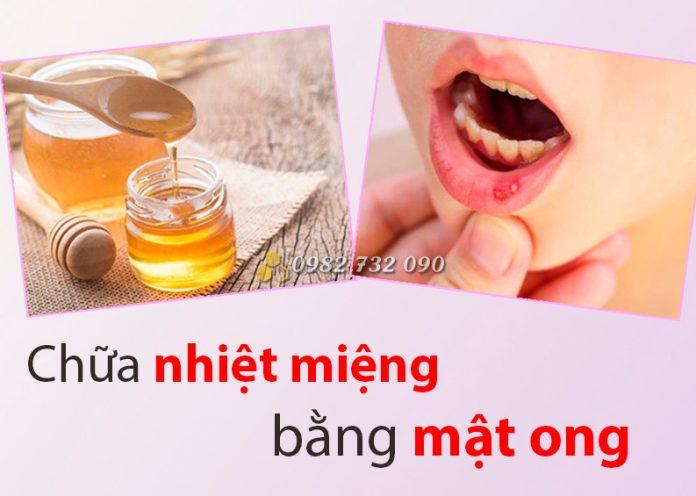 Phương pháp chữa nhiệt miệng cấp tốc