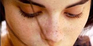 http://matongsonla.vn - phương pháp chữa tàn nhang
