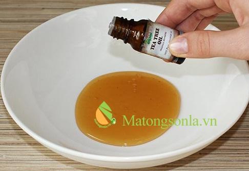 http://matongsonla.vn - hỗn hợp mật ong tinh dầu trà trị mụn